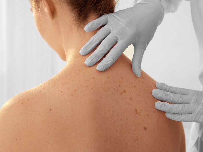 skin cancers   melanoma