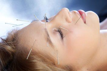 acupuncturepainrelief