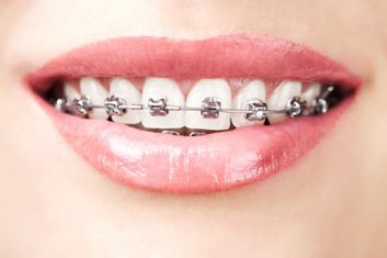 Straighten your teeth with these braces options for adults