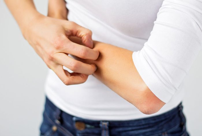 skin says about your health | itchy skin