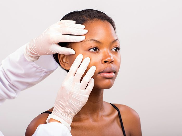 Blackheads, woman getting her face checked out by a doctor wearing surgical gloves