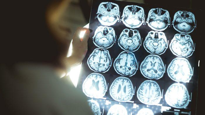Diseases, Alzheimer's disease