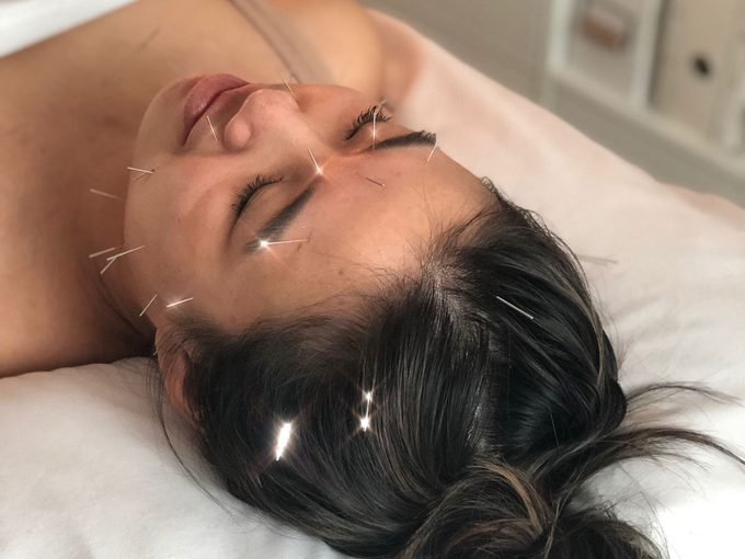 Madelyn Chung facial acupuncture