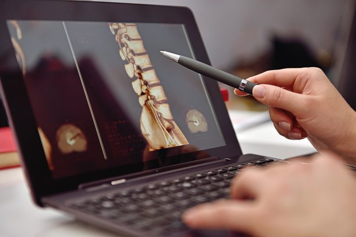 Doctor Pointing to X-ray Of Patient On Laptop Screen. Close Up