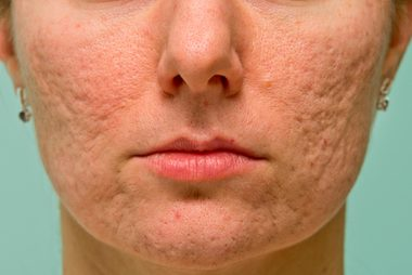 02-boxcar-The-5-Types-of-Acne-Scars-and-How-to-Treat-Them-170660708-Budimir-Jevtic