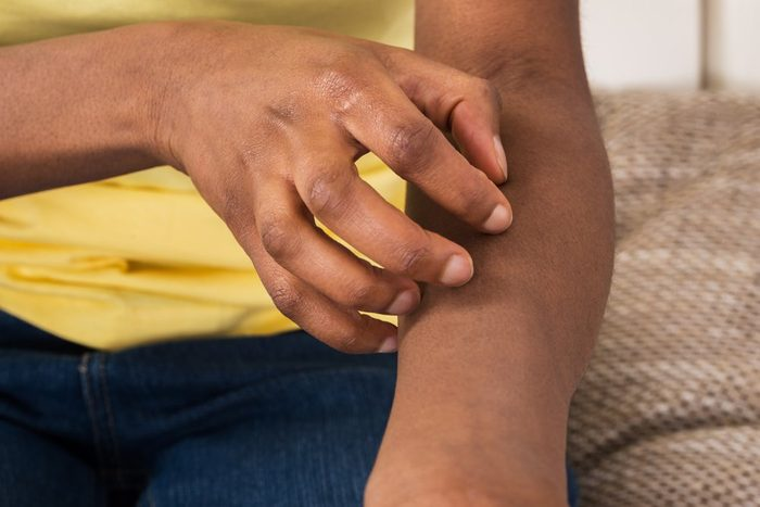 Close-up Of A African Woman Suffering From Itching