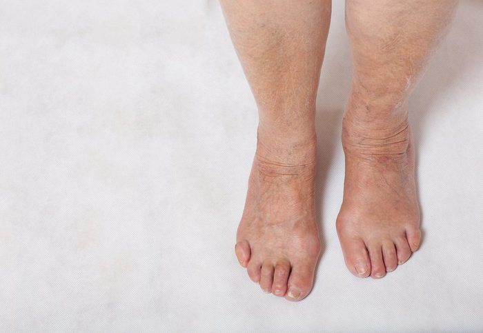Feet of a senior woman between 70 and 80 years old