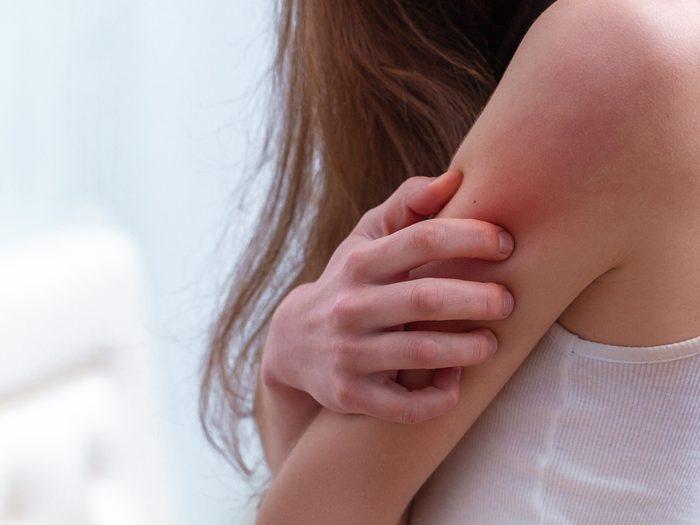 what does eczema look like