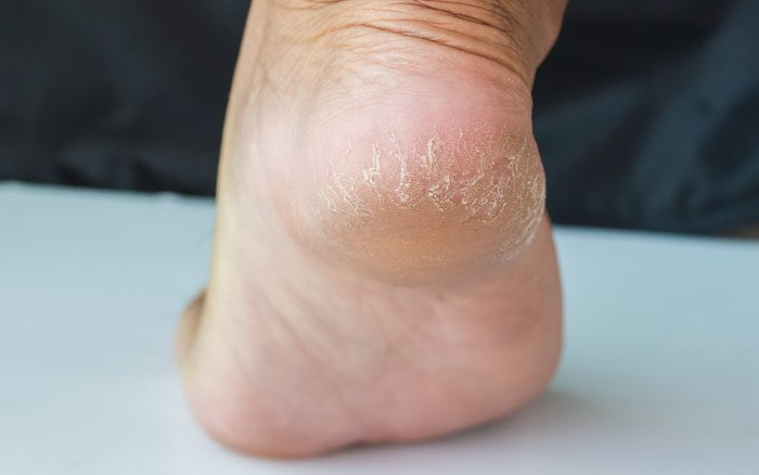 Closed-up of a dry and cracked heel