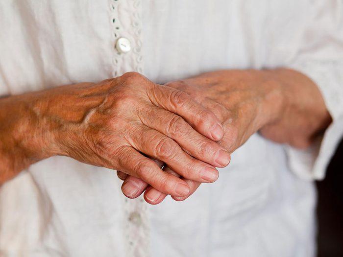 epsom salt bath - arthritis hands