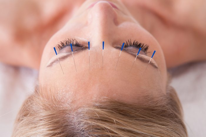 Anti-Aging Treatments   Detail Of A Woman Receiving An Acupuncture Needle Therapy