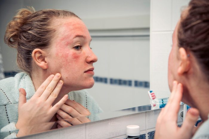 hives on face | woman looking in mirror at hives on face